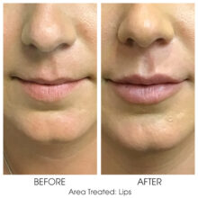 Before_and_After_Lips_1