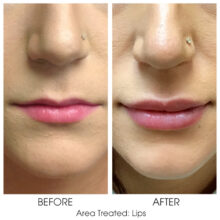 Before_and_After_Lips_10