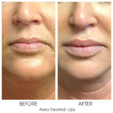 Before_and_After_Lips_11