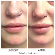 Before_and_After_Lips_12