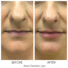 Before_and_After_Lips_13