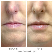 Before_and_After_Lips_14
