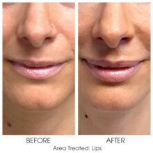 Before_and_After_Lips_2