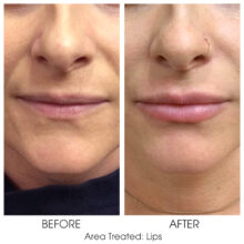 Before_and_After_Lips_3