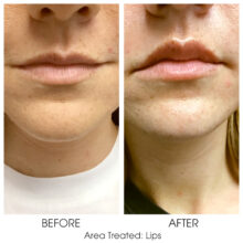 Before_and_After_Lips_4