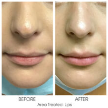 Before_and_After_Lips_5