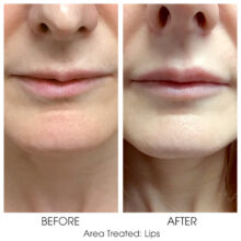 Before_and_After_Lips_6