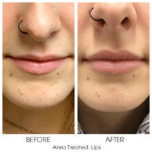 Before_and_After_Lips_8