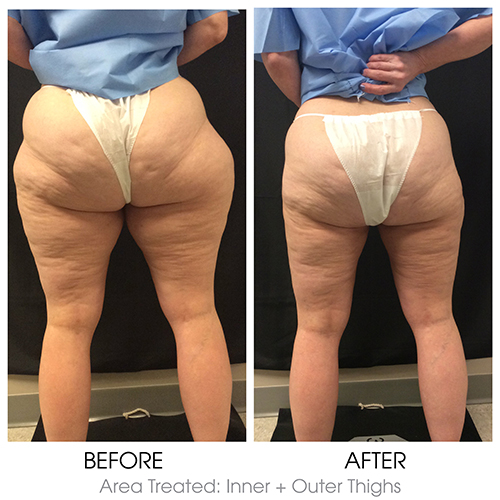 SmartLipo® Laser Liposuction