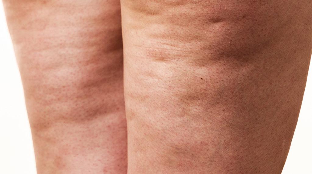 Celluliter hur blir man av med?