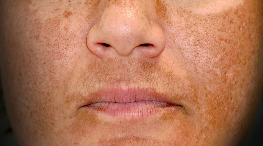 img_mp_concerns_melasma_v3