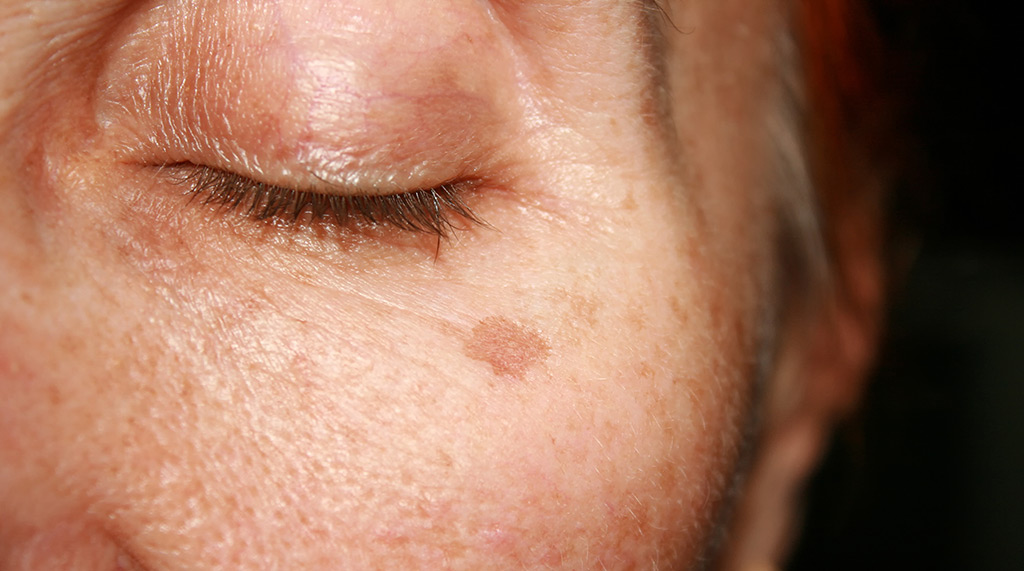 Sun Damage and Brown Spots