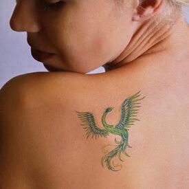img_serv_body_tattoo-removal