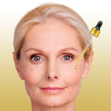 MICRO-NEEDLING<br>GOLD TREATMENT<br>WITH PRP