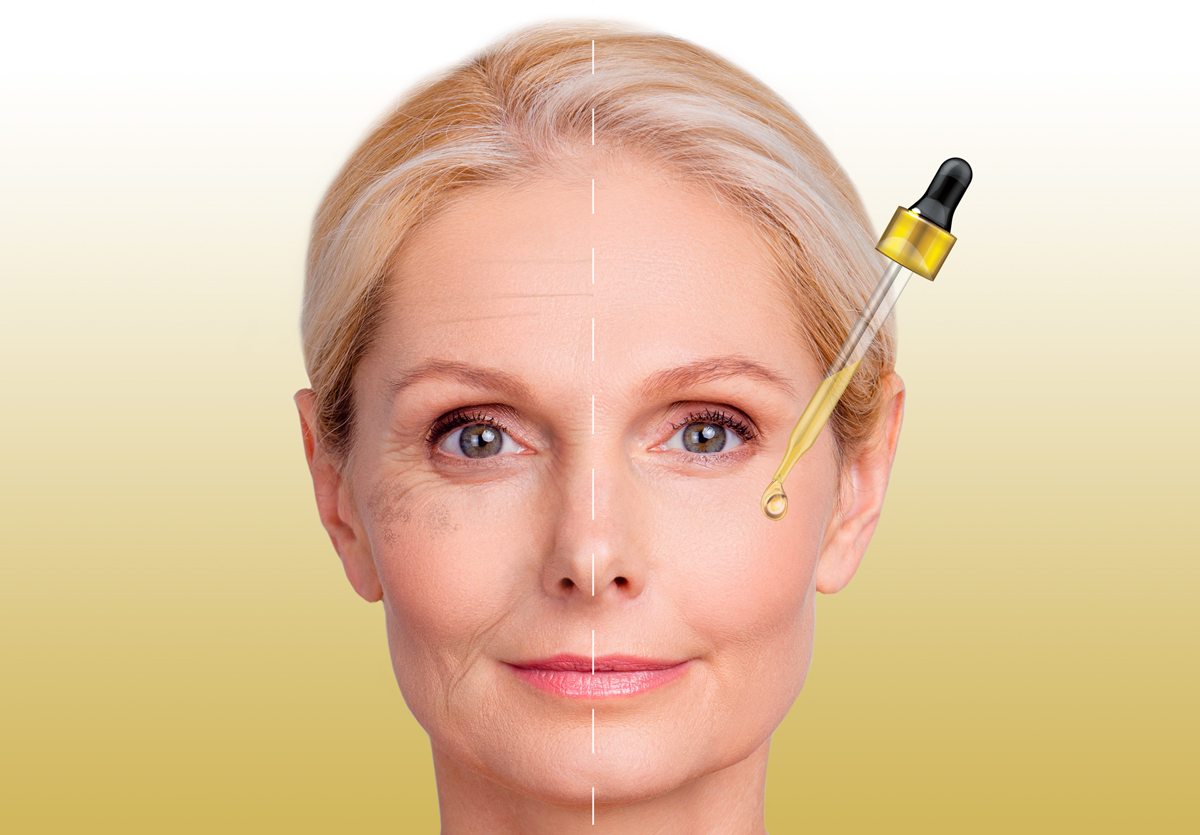 wrinkles_gold